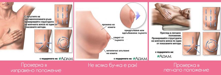 как да се прегледаме сами за бучки в гърдите