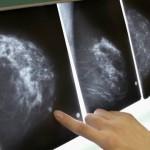 направление за мамограф